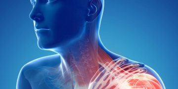 Shoulder pain and muscular tension – 4 Top Tips to reduce it!