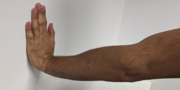 Forearm pain? 4 things that might be causing it!